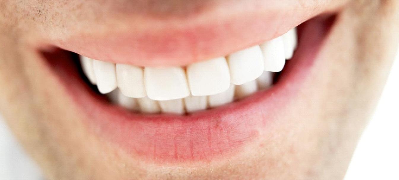 Centro Odontologico Sorriso Clareamento Dental
